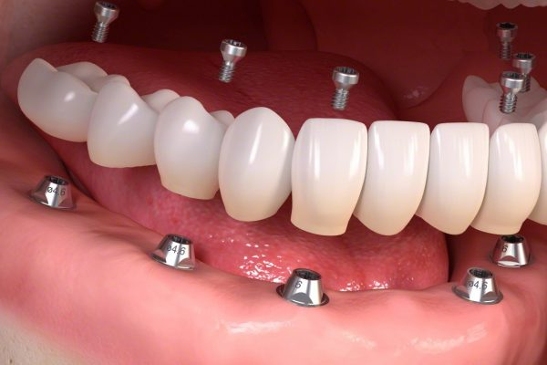 Fixed_restoration_with_4-6_implants_all_straight_03